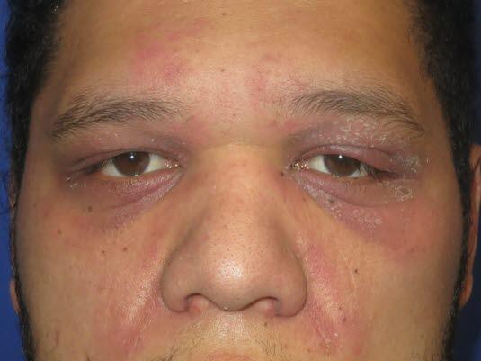 Heliotropisches Ödem: Diese Erkrankung kann ein Zeichen für eine maligne Grunderkrankung sein.