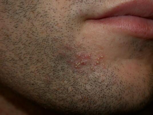 Follikulitis nach der Rasur