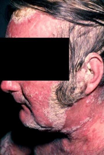 Erythrodermische Psoriasis