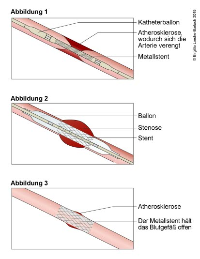 Stentbehandlung an einem verengten Blutgefäß