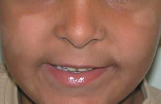 Pityriasis alba. Bei Kindern sind die Läsionen meist auf das Gesicht beschränkt und treten am häufigsten um den Mund, an Wangen und Kinn auf.