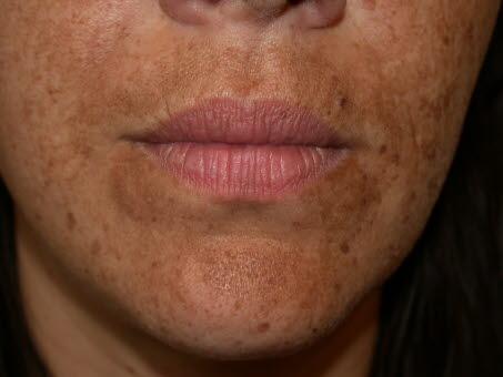 4859-2-hudlidelser-svangerskap-melasma.jpg