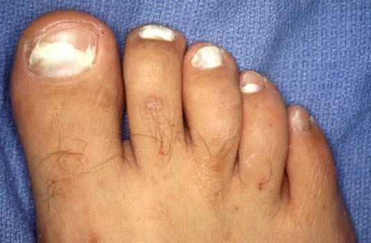 Wenn Nagelpilz eine längere Zeit unbehandelt bleibt, geht er häufig auf die anderen Nägel über.