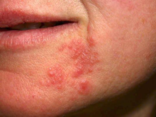 Periorale Dermatitis, beachten Sie die perioralen Veränderungen mit einer symptomfreien Zone um den Mund herum