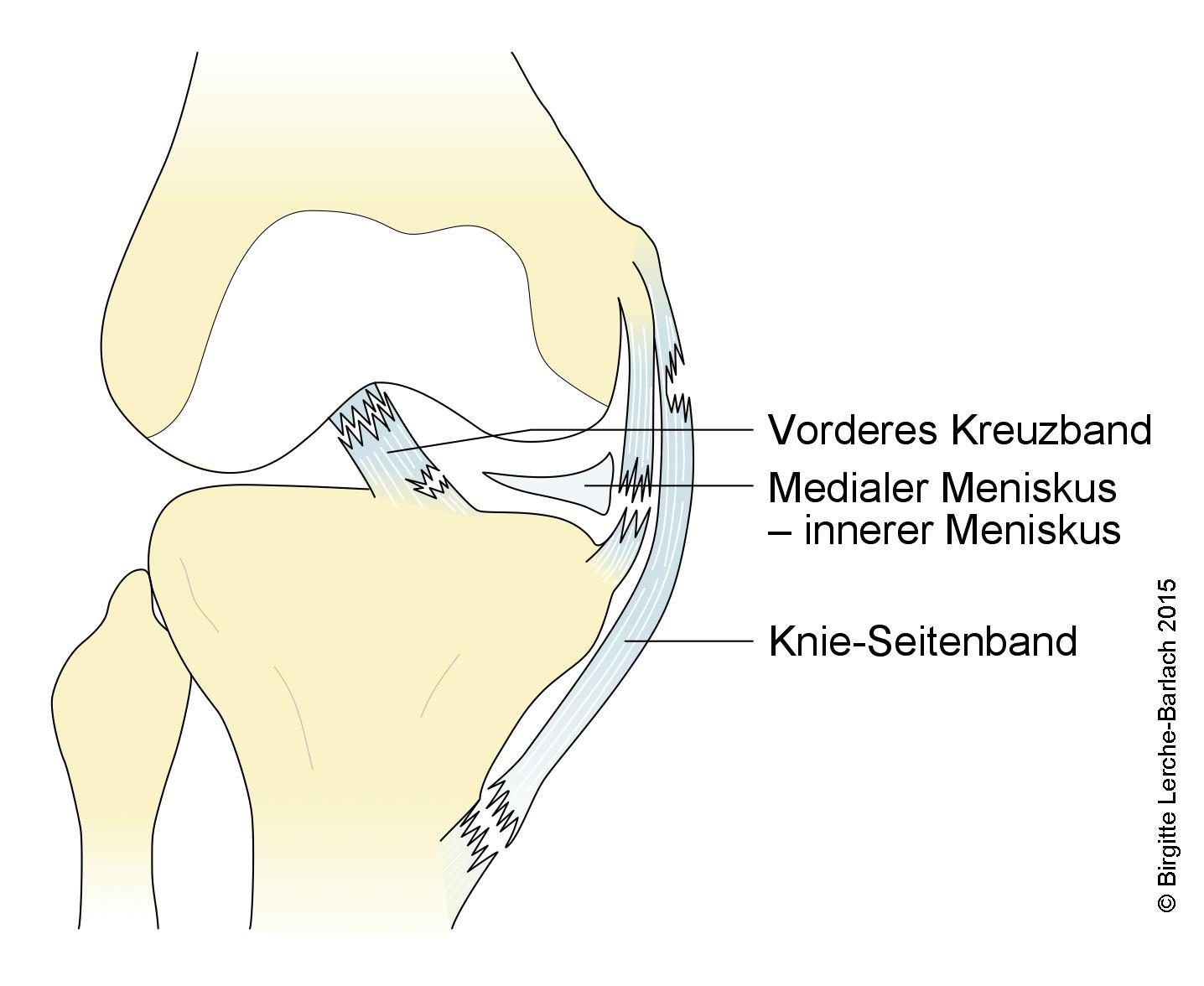 Knie: Läsion an Bändern, Kreuzband und Meniskus