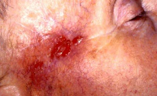 Unscharf begrenztes Basalzellkarzinom, ein narbiger Tumor vom sog. Morphea-Typ.