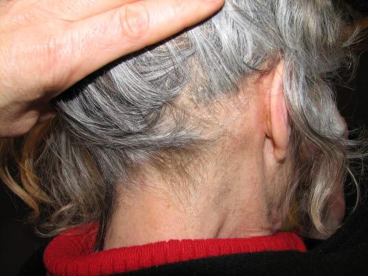 Seborrhoisches Ekzem, Kopfhaut