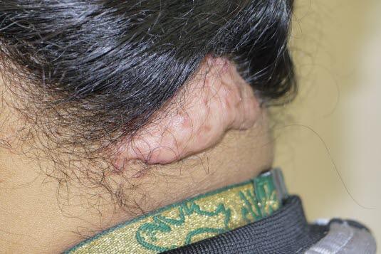Folliculitis keloidalis ist bei Männern 20-mal häufiger und kann mehrere Jahre andauern. Vermutlich handelt es sich eine Infektion infolge eingewachsener Haare oder um eine eigene Erkrankung/Hautleiden, die unabhängig von diesen Faktoren auftritt.