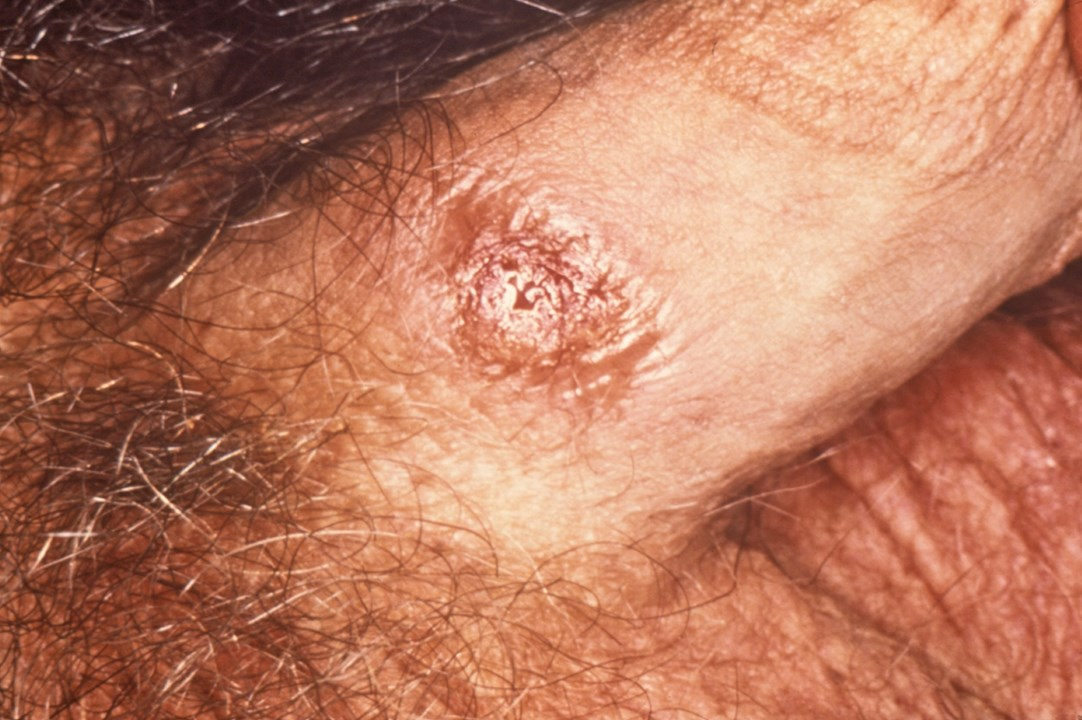 52608-2-primer-syfilis.jpg