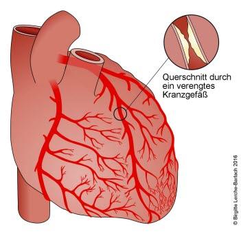 Verengtes Herzkranzgefäß bei koronarer Herzkrankheit
