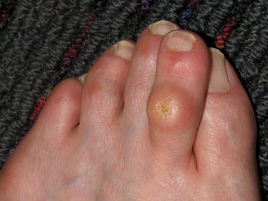 Clavus: Hautverdickung (lokale Verhornungsstörung) im Bereich der Fußsohle oder der Zehen
