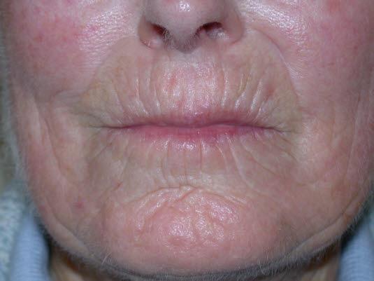 """""""Tabaksbeutelmund"""" bei systemischer Sklerose aufgrund von atrophischen Veränderungen im Lippenbereich."""