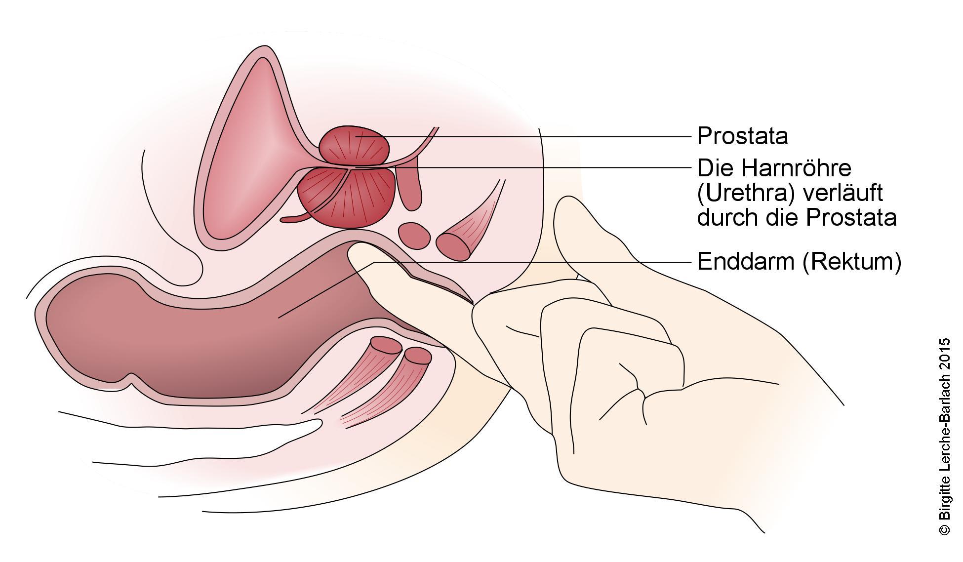 Untersuchung der Prosta.jpg