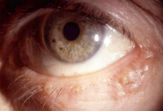 Basalzellkarzinom am Auge.
