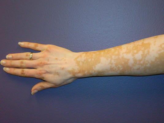 Die Vitiligoflecken liegen im Hautniveau und zeigen keine epidermalen Veränderungen wie beispielsweise Schuppen.
