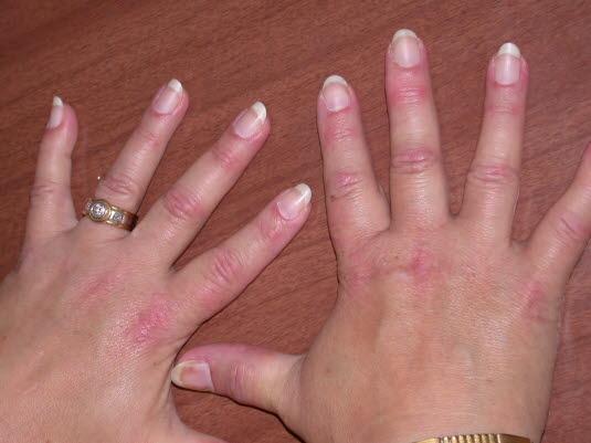 Eine Dermatomyositis führt oft zu Nagelwurzelveränderungen mit u. a. periungualen Teleangiektasien.