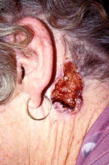 Noduläres Basalzellkarzinom mit großer Ulzeration (Ulcus rodens). Charakteristisch saumartiger Rand mit Teleangiektasien. Basaliome metastasieren in der Regel nie.