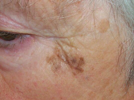 Das Lentigo-maligna-Melanomentwickelt sich vor allem auf stark der Sonne ausgesetzter und sonnengeschädigter Haut bei älteren Personen. Solche Melanome sind in der Regel im Gesicht oder am Hals lokalisiert.