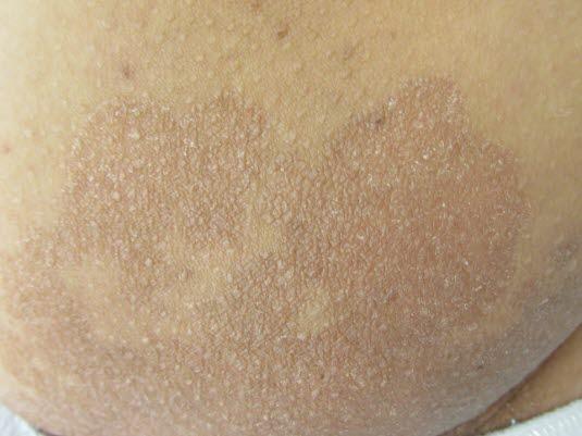 Erythrasma, klinisches Bild