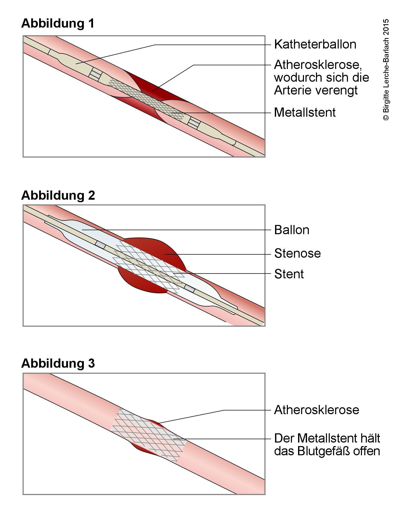 Stentbehandlung bei verengtem Blutgefaessen.jpg