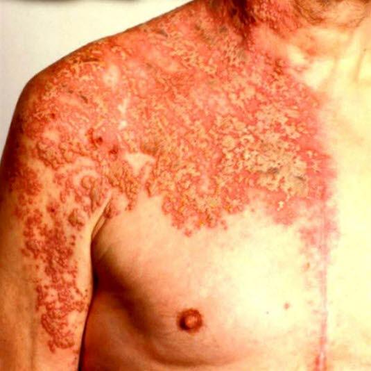 Zoster: Ansammlungen von Bläschen auf erythematöser Haut, die sich einseitig entlang eines Dermatoms ausbreiten.