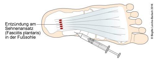 Plantare Fasziitis, Injektionstherapie
