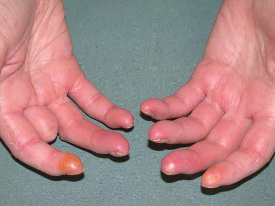 Die systemische Sklerose kann kleinere Veränderungen wie Sklerodaktylie, Erosionen und Atrophie der Fingerspitzen verursachen.