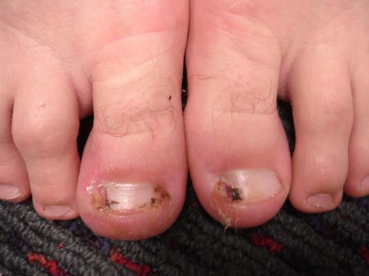 Bei eingewachsenen Zehennägeln sind dort, wo der Nagel in die Haut schneidet, Ödeme und Entzündungen und mitunter Granulationsgewebe zu beobachten.
