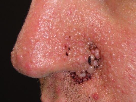 Angiofibrome des Gesichts sind bei den meisten Patient*innen mit tuberöser Sklerose zu finden. Der Ausschlag weist eine symmetrische, schmetterlingsförmige Ausbreitung über Nase und Wangen auf. Das Bild zeigt ein Angiofibrom in der Spätphase.