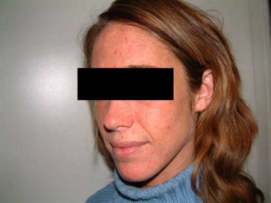 Porphyria cutanea tarda, Gesicht. Eine Porphyria cutanea tarda kann zu Vesikeln oder Bullae auf lichtexponierter Haut führen, diese können mehrere Zentimeter groß sein.
