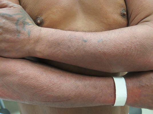 Xerodermie – typische Hautveränderungen eines atopischen Ekzems nach langjähriger Erkrankung.