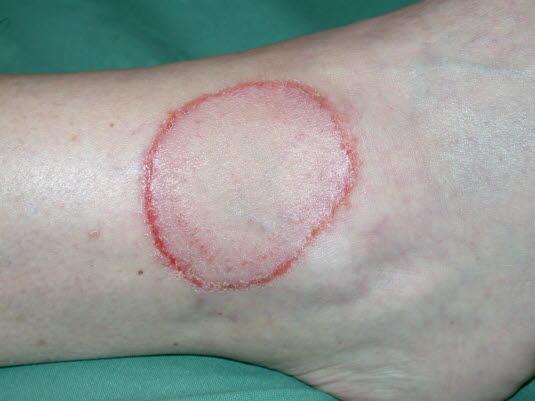 Tinea corporis. Auf freier Haut wachsen Dermatophyten radiär und bilden kreisförmige oder polyzyklische Läsionen mit erhöhter Aktivität und Entzündungen in der aktiven Randzone der Infektion.