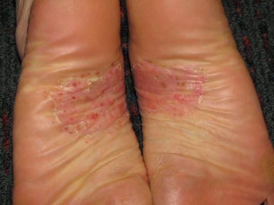Die Pustulosa palmoplantaris ist gekennzeichnet durch 3–10 mm große, sterile Pusteln an den Handflächen und den Fußsohlen.