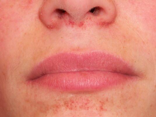 Läsionen bei tuberöser Sklerose beginnen häufig in Form von gelb-roten Papeln. Mit der Zeit verändern sie sich zu erythematösen und papulonodulären Hautläsionen, deren Oberfläche leicht zu bluten beginnt. Das Bild zeigt ein Angiofibrom in der Frühphase.
