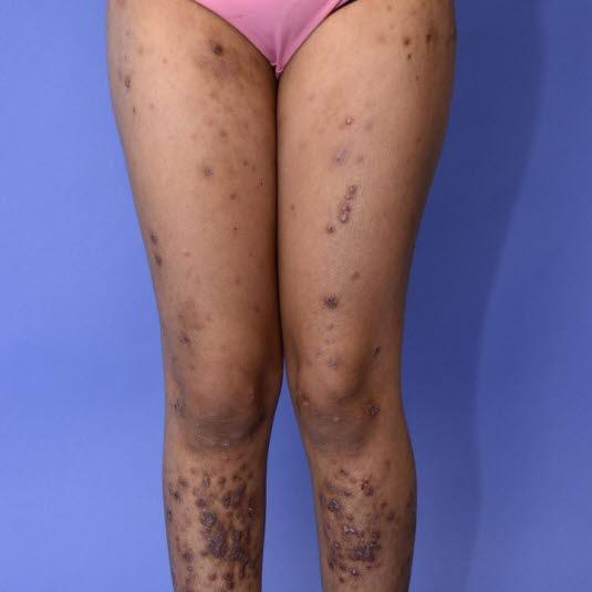 Ein atopisches Ekzem kann narbenartige, hyperpigmentierte und leicht lichenifizierte Hautveränderungen hinterlassen.