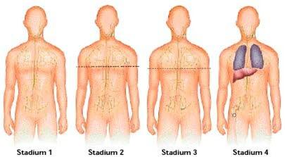 Lymphom-Staging (Information zu den einzelnen Stadien)