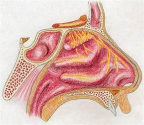Allergische Rhinitis Bild 1