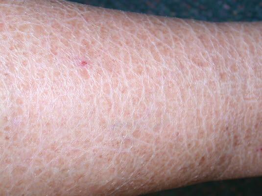 Ichthyosis. Symmetrische Schuppenbildung der Haut, die von kaum sichtbarer Rauheit und Trockenheit bis zu kräftigen, verhornten, großflächigen Schuppen reichen kann.