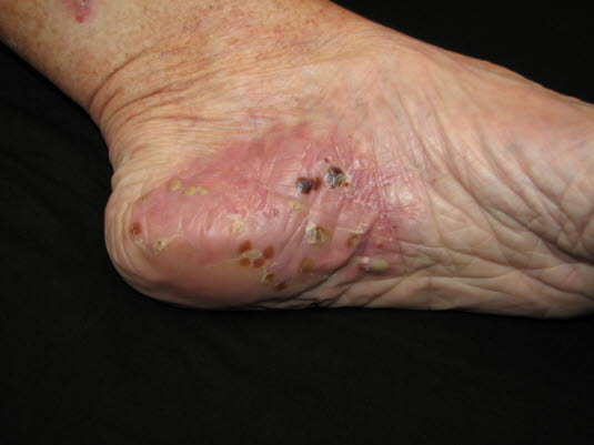 Pustulosis palmoplantaris: Die Haut ist erythematös und die Pusteln sind zunächst gelb, wechseln ihre Farbe aber nach und nach zu braun und schuppen schließlich ab.