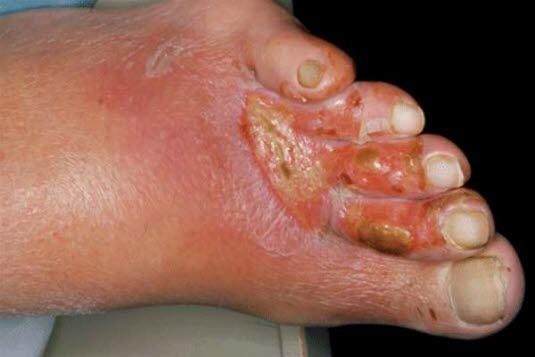 Arterielle Ulzera treten meist distal des Knöchels auf.