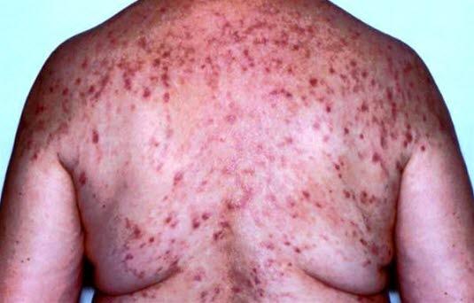 Die Abbildung zeigt eine Dermatitis herpetiformis Duhring mit primären Effloreszenzen in Form von Bläschen oder Vesikeln. Aufgrund von Exkoriation und Erosionen kann dies schwierig zu erkennen sein.